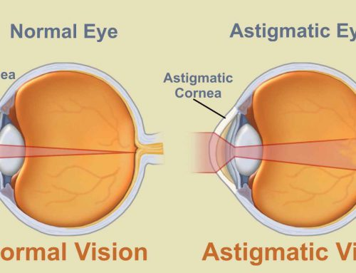 Szemtengelyferdülés – Asztigmatizmus