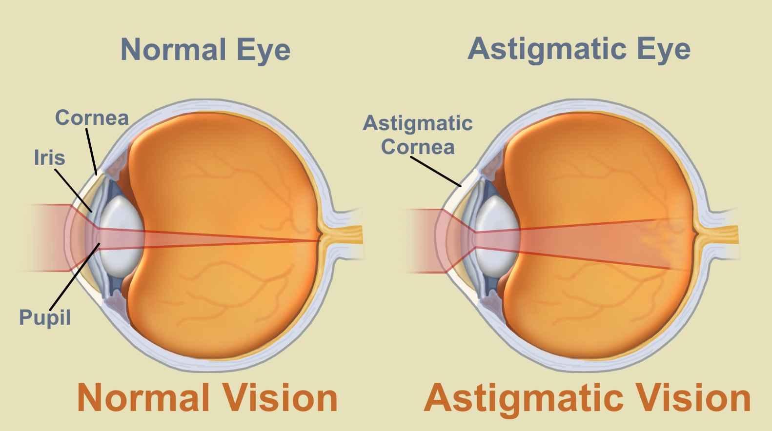 új látás asztigmatizmus